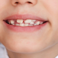 bambini e denti storti