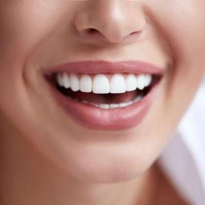 Faccette dentali estetiche o ortodonzia