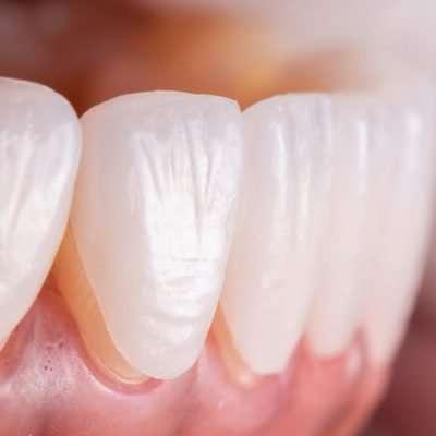 Faccette Dentali senza limare i denti