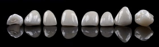 Studio Fedi - Faccette dentali