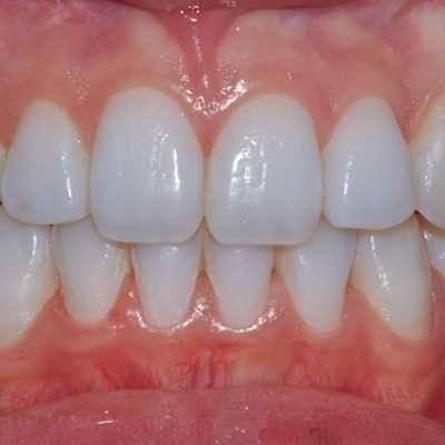 L'aspetto iniziale dei denti di questo caso è documentato in fondo alla pagina